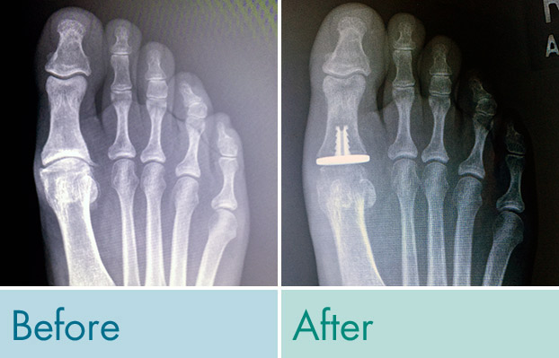 First Metatarsal Phalangeal Joint Replacement