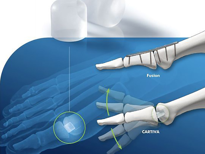 Cartiva Implant
