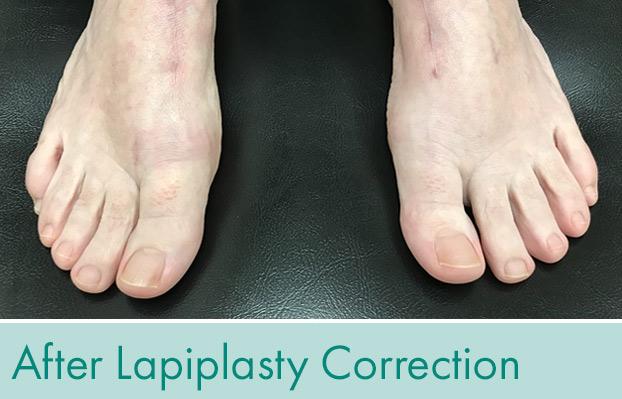Both feet had a Lapiplasty correction.