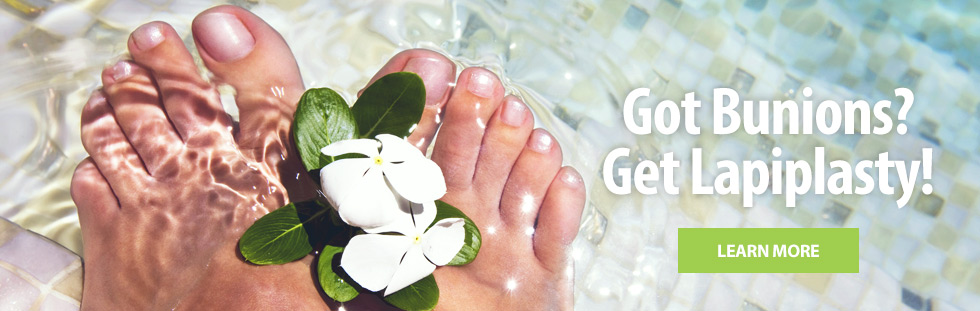 Got Bunions? Get Lapiplasty! Learn More