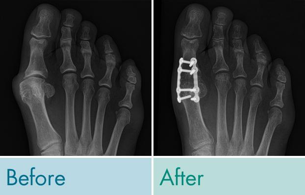 Lapiplasty 3D 1st Metatarsal Phalangeal Joint Fusion